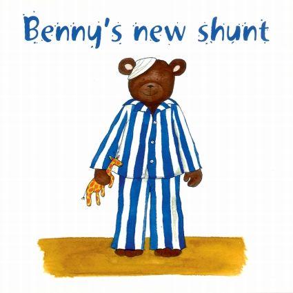 Benny's New Shunt