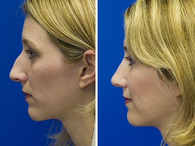 POWERFUL! ★GET RID OF NOSE HUMP★  Get Perfect Nose