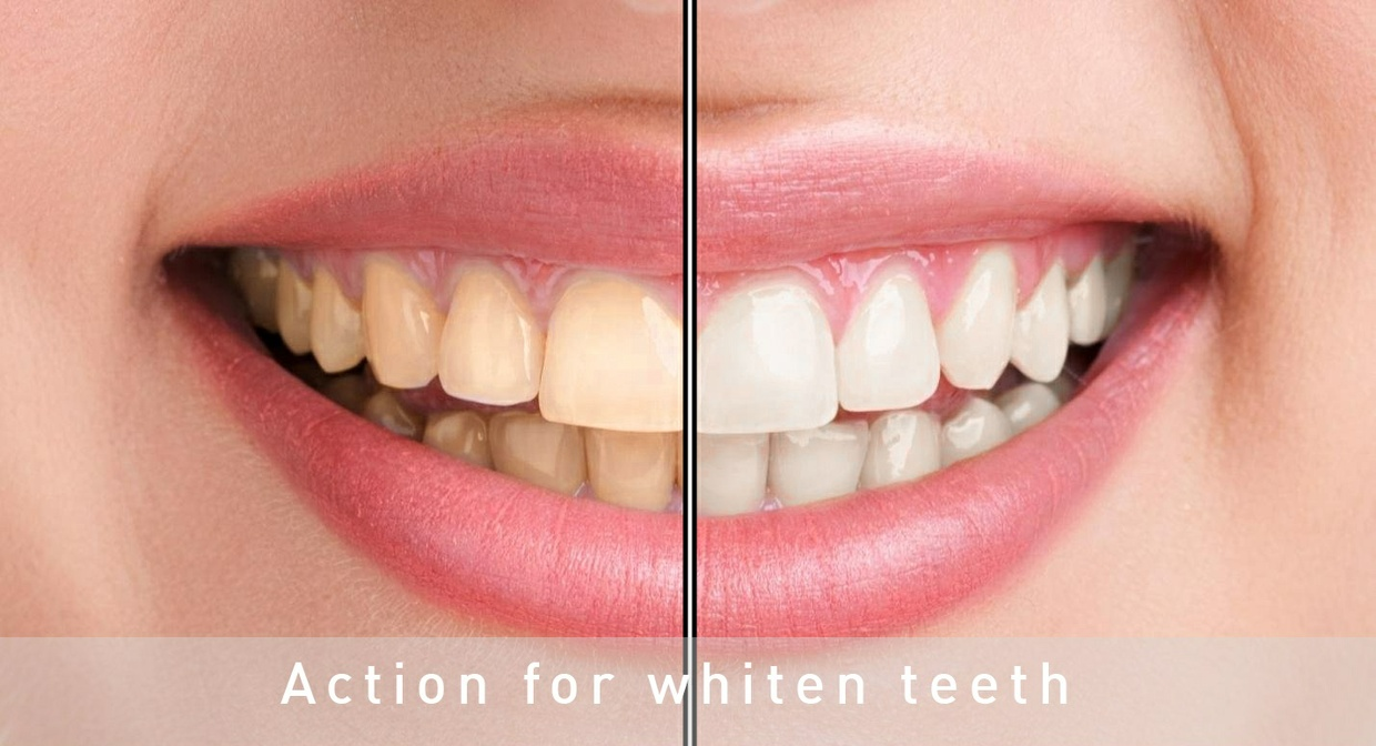 Photoshop Action for whiten teeth.