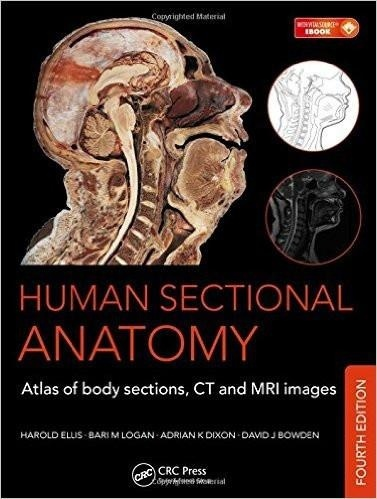 Human Sectional Anatomy Atlas of Body Sections, CT and MRI Images,4th ed ( PDF , Instant download )