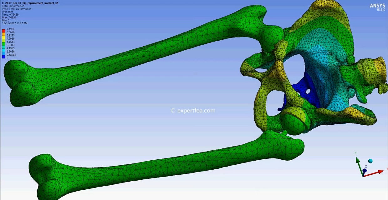 MECHDAT file and 3D model as ACIS (SAT) for total hip replacement implant
