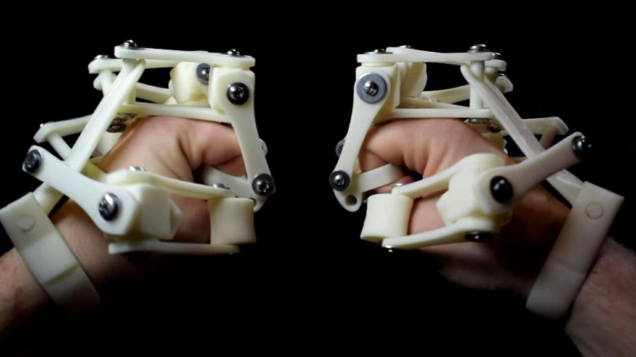 3D Printed Exoskeleton Hands - STL Files