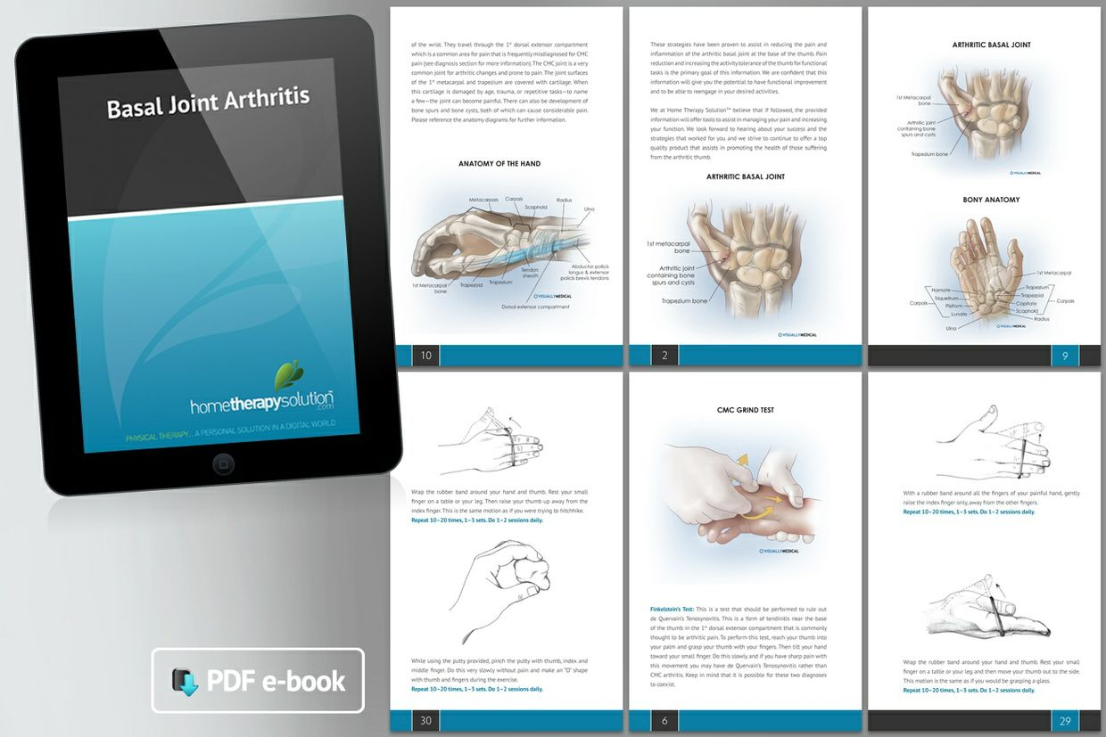 Thumb Arthritis (Basal Joint) Therapy Book