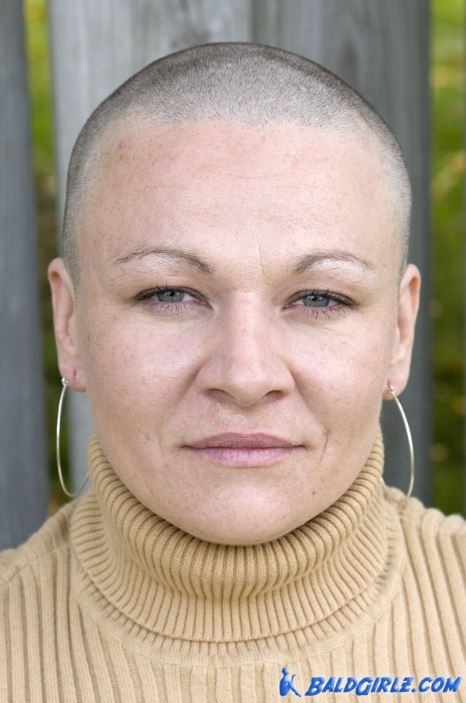 30 Photos of Nearly Bald Samantha