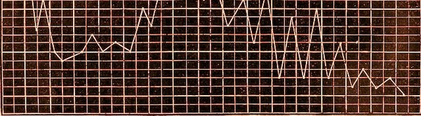 Audiolibro: Fritt-Flacc (J. Verne)