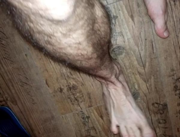 feetws